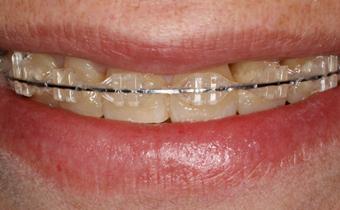 ortodoncia-1[destacada]